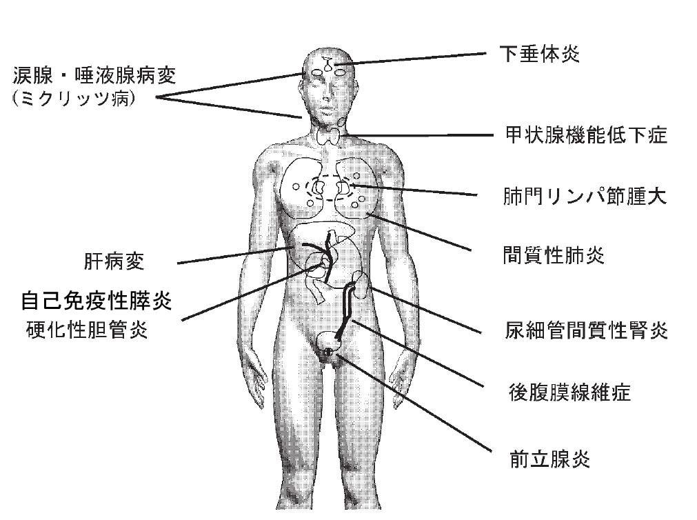 IgG4関連疾患