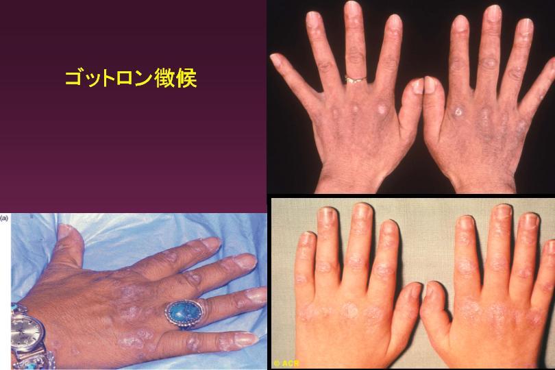 筋炎 皮膚