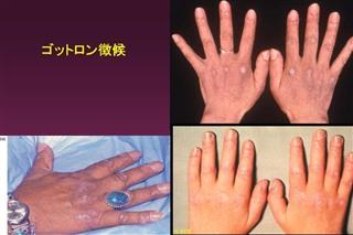 多発性筋炎/皮膚筋炎